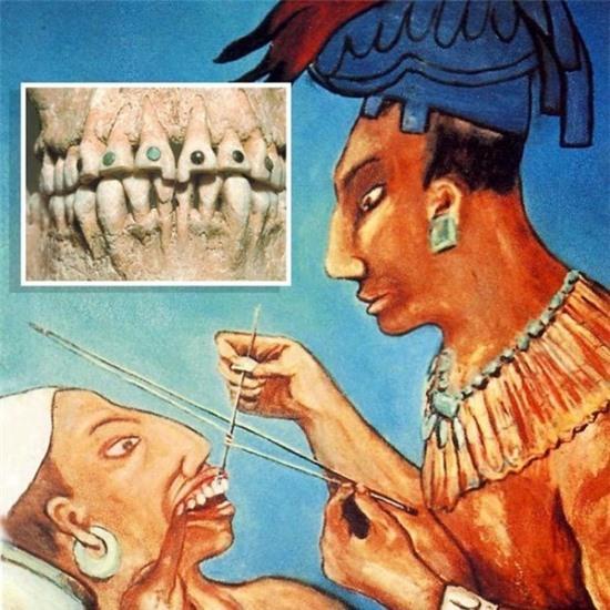 Xem người Maya cổ đục và đeo đá quý vào... răng 2