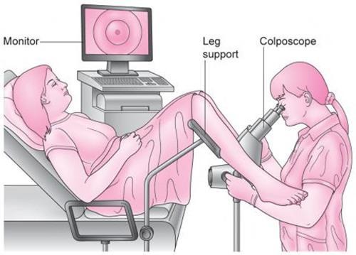 xét nghiệm tầm soát ung thư