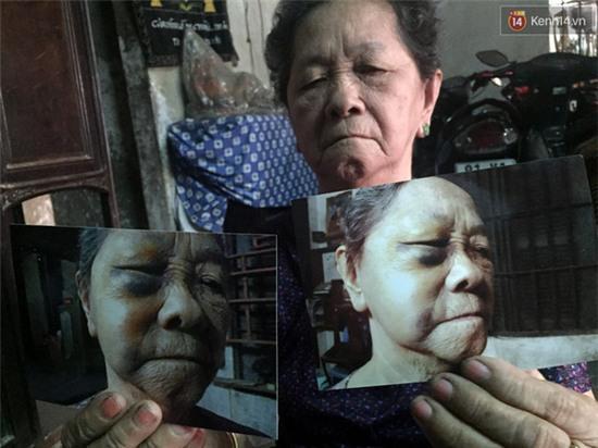TP. HCM: Khuyên các con đừng cãi nhau, cụ bà bị đánh gãy xương hốc mắt - Ảnh 1.