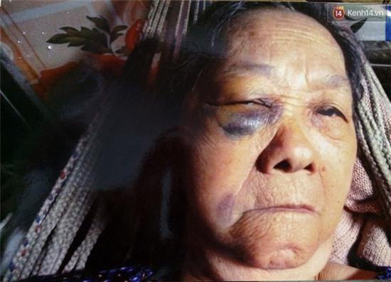 TP. HCM: Khuyên các con đừng cãi nhau, cụ bà bị đánh gãy xương hốc mắt - Ảnh 2.