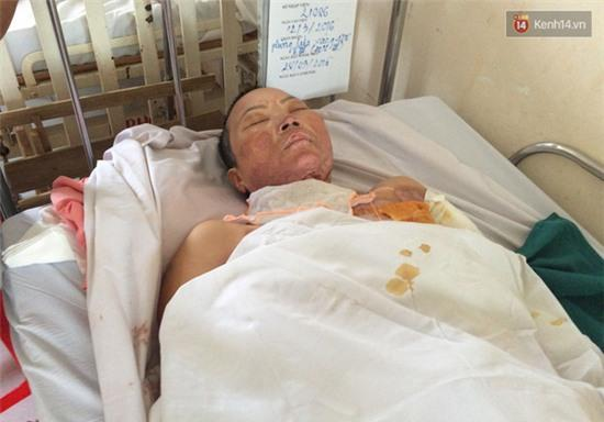 Bé gái 3 tuổi nghịch xăng bên bếp lẩu, cả gia đình bị thiêu sống - Ảnh 2.