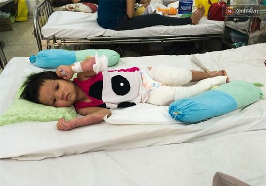 Bé gái 3 tuổi nghịch xăng bên bếp lẩu, cả gia đình bị thiêu sống - Ảnh 4.
