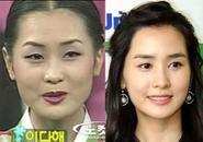 "Lee Da Hae lại bị ""soi"" về vấn đề giải phẩu thẩm mỹ"