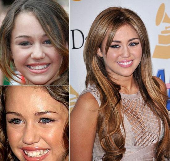 100712rang7 Những hàm răng xấu của sao được lên đời