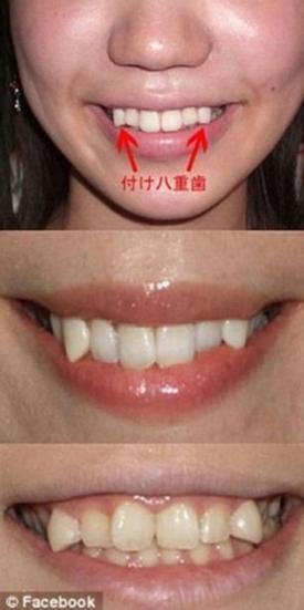 Thiếu nữ Nhật Bản 'chuộng' mài răng ma cà rồng