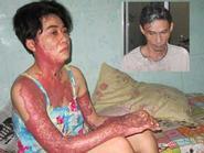 Nỗi đau của người vợ bị chồng tạt xăng thiêu sống