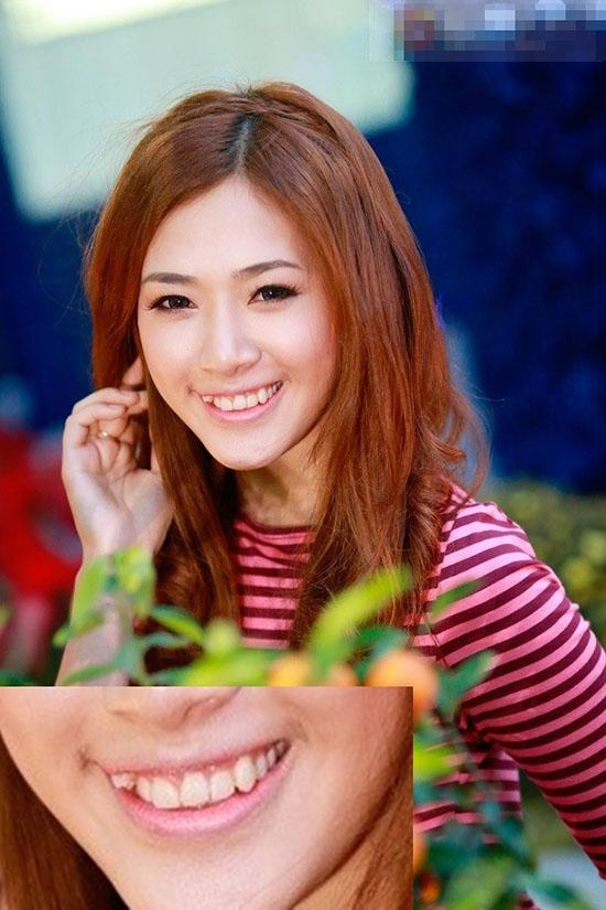 Khuyết điểm của hot girl Việt