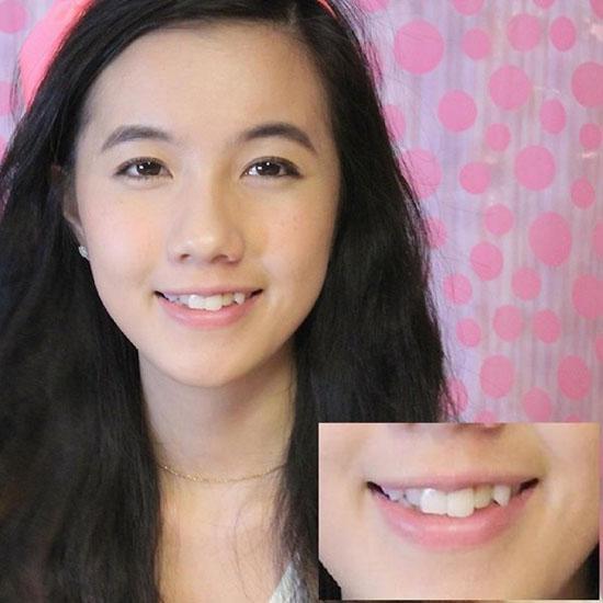 Xã hội - 'Tăm tia' khuyết điểm ngoại hình của hot girl Việt (Hình 4).