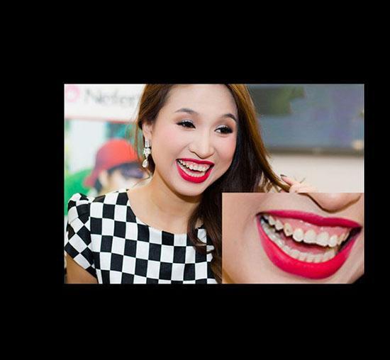 Xã hội - 'Tăm tia' khuyết điểm ngoại hình của hot girl Việt (Hình 10).