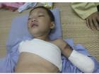 Bé trai 5 tuổi bị gấu cắn đứt lìa tay ở Phú Thọ