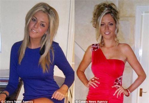 Hot girl 18 tuổi đột quỵ vì thuốc tránh thai