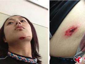 Chấn thương kinh hoàng của nữ tay đua xinh đẹp Đài Loan