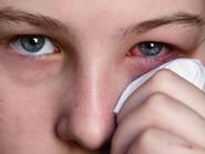 Đau mắt đỏ: Các biện pháp đơn giản trị bệnh tại nhà