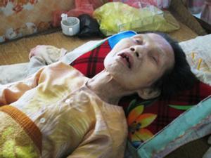 Ly kỳ người chết đi sống lại ở Việt Nam