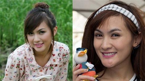 Muôn kiểu hậu phẫu thuật thẩm mỹ của hot girl Việt