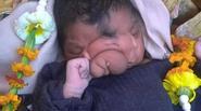 """Em bé có chiếc """"vòi voi"""" mọc trên khuôn mặt"""
