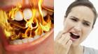 Đi tìm nguyên nhân của căn bệnh lạ: muốn bùng cháy trong miệng
