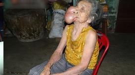 Cuộc đời cơ cực của cụ bà mang khối u khổng lồ trên mặt