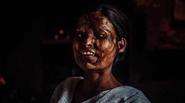 Ký ức kinh hoàng của những cô gái bị tạt axit ở Ấn Độ