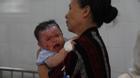 Số trẻ nhập viện vì bỏng tăng cao khi mùa hè đến