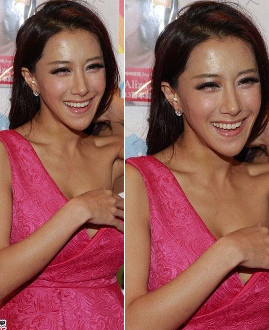 Trương Noãn Nhã sở hữu chiếc cằm nhọn bất thường và gương mặt cô đã biến  thành hình tam giác.