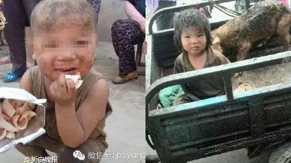 Sốc với em bé bị ngược đãi dã man