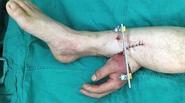 Chàng trai có bàn tay đứt rời được nối tạm vào chân