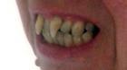 Được bồi thường gần 900 triệu đồng vì hàm răng... ma cà rồng