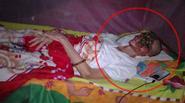 Xót thương người đàn ông ở Tiền Giang còn 1 nửa khuôn mặt vì bệnh lạ