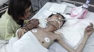 Những ngày cuối đời, chàng trai nhiễm dioxin vẫn mang tâm nguyện cứu em trai