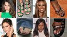 Viêm ngón chân cái - căn bệnh cướp đi đôi chân ngọc ngà của sao Hollywood