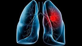 Ung thư phổi gia tăng, số người mắc bệnh ngày càng trẻ hóa