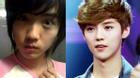 Luhan (cựu thành viên EXO) lộ ảnh trước phẫu thuật thẩm mỹ?