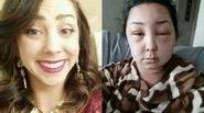 Lý giải vì sao bạn có thể bị biến dạng khuôn mặt hoặc ung thư sau khi nhuộm tóc