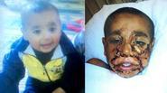 Đau lòng nhìn khuôn mặt bé trai 4 tuổi sau vụ nổ trong cuộc tấn công tại Syria