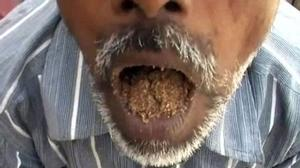 Người đàn ông kỳ quái ăn cát, sỏi đá suốt 25 năm