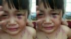 Bé gái 3 tuổi bị cha dượng đánh dã man để 'trả thù'!