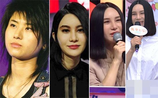 Sao Hoa ngữ: 'người lên hương - kẻ xuống sắc' sau thẩm mỹ
