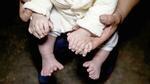 Em bé có tới 31 ngón tay, chân ở Trung Quốc