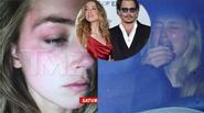 Amber Heard tung ảnh bầm mắt, tố Johnny Depp bạo hành mình
