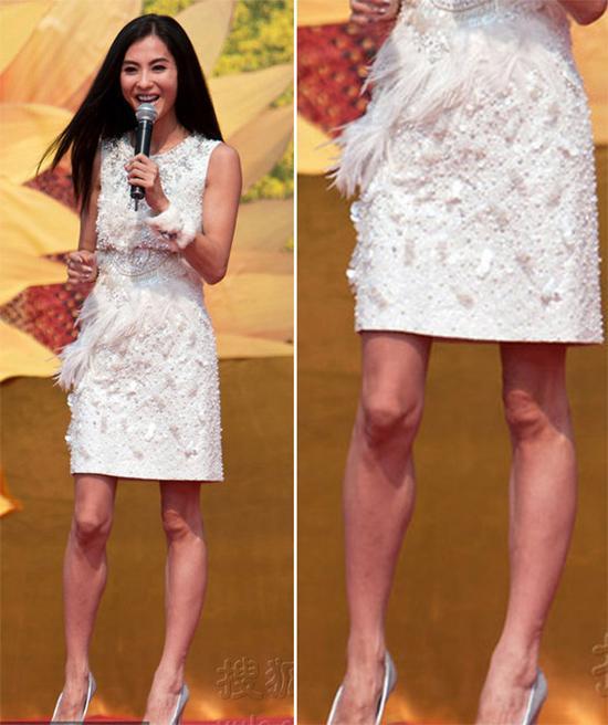 Bất cứ ai cũng phải 'hốt hoảng' vì tay chân quá xấu của sao nữ này