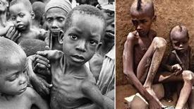 Những đứa trẻ châu Phi gầy trơ xương vì đói sẽ khiến bạn không dám bỏ thừa đồ ăn