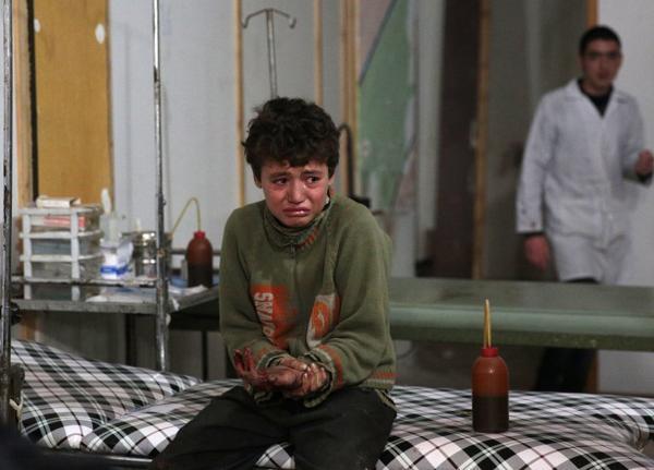 Bé trai Syria đang khóc vì đau. Em là nạn nhân trong cuộc không kích của quân đội chính phủ với phiến quân nổi loạn Douma ngày 18/11/2015