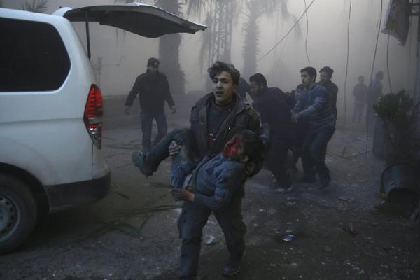 Cậu bé Syria bị thương trong trận không kích ở thị trấn Hamouria, phía đông Ghouta tháng 12/2015