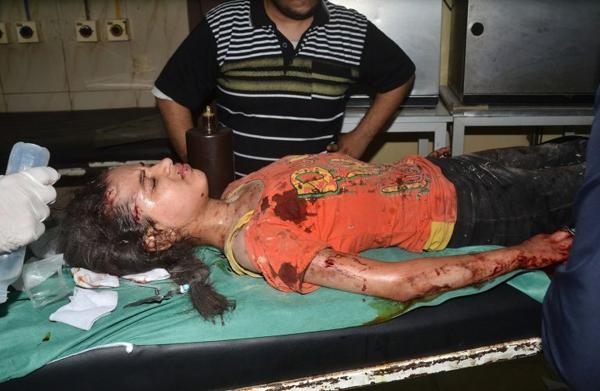 Một bé gái Syria bị thương nặng trong cuộc pháo kích tại khu phố Meidan, phía bắc Aleppo ngày 27/5/2016