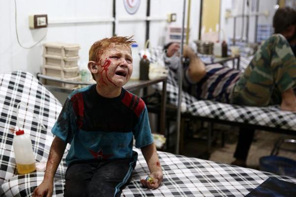 Salam, bé trai 8 tuổi gào khóc tại bệnh viên sau vụ không kích của phiến quân nổi loạn ở gần Douma, phía đông thủ đô Damascus.