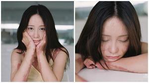 Bộ ảnh tuyệt đẹp của cô gái trẻ từng bị bạn học tẩm xăng đốt vì mâu thuẫn tình cảm