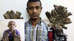 Cậu bé có bàn tay như rễ cây ở Bangladesh