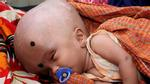 Em bé đáng thương có đầu phình to gấp 3 lần người thường