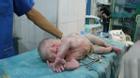 20 phút nỗ lực không ngừng hồi sinh em bé ngưng tim trong bụng mẹ